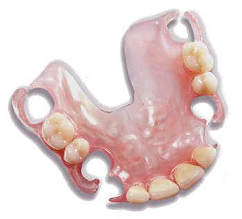 Valplast™ Partials | Lakeview Dental