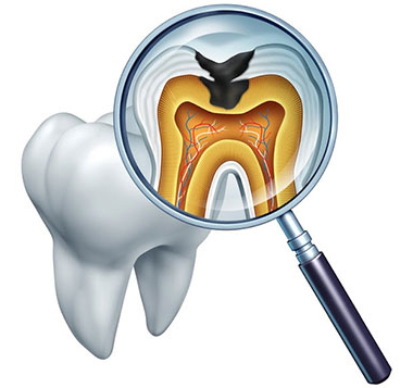 Root Canal Therapy at Roy | Lakeview Dental